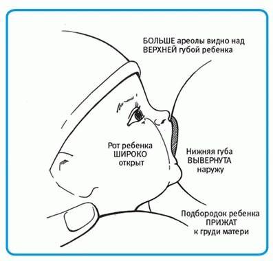 Трещины на сосках при кормлении грудью профилактика и лечение трещин